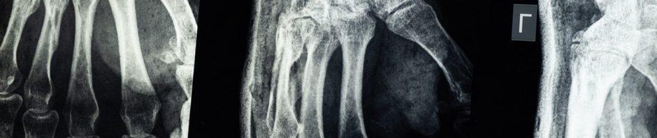 Odpowiednio realizowana rehabilitacja różnych urazów ortopedycznych